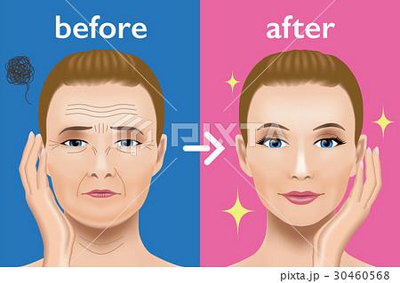 顔のシワ治療 ビフォーアフター 30460568