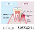 健康な歯と歯周病の歯 比較 30558241