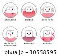 歯の病気 虫歯 歯周病 30558595