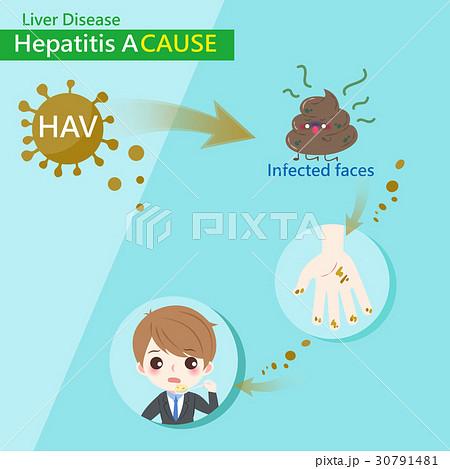 hepatitis a causeのイラスト素材 [30791481] - PIXTA