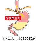 胃 胃酸 逆流のイラスト 30892529