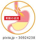 胃 胃酸 逆流のイラスト 30924238