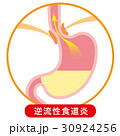 胃 胃酸 逆流のイラスト 30924256