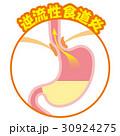 胃 胃酸 逆流のイラスト 30924275