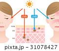紫外線 女性 断面図のイラスト 31078427