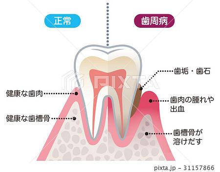 「健康な歯肉 イラスト」の画像検索結果