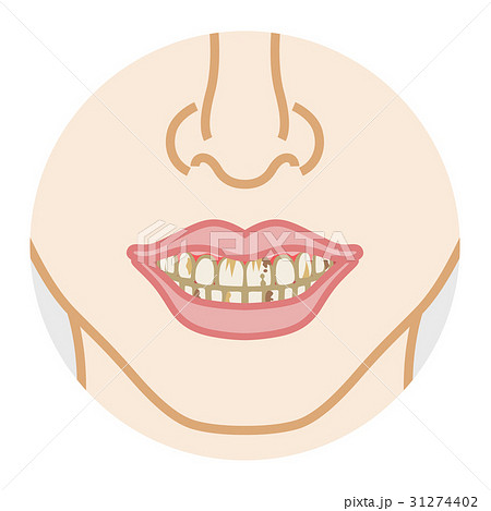 虫歯 色素沈着 ボディーパーツ 31274402