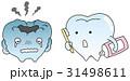 虫歯と健康な歯 31498611