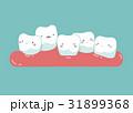 口腔衛生 手術 歯のイラスト 31899368