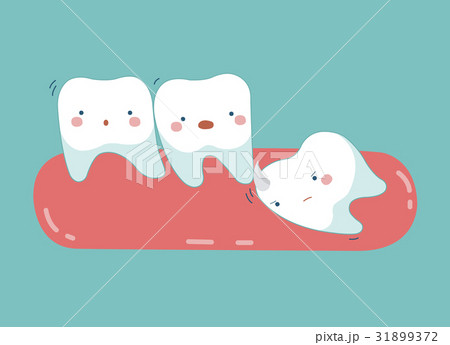 Wisdom tooth push other tooth ,teeth and tooth  31899372