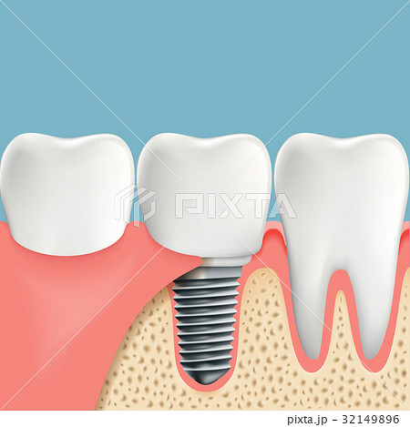 Human teeth and Dental implant. 32149896