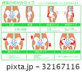 骨格 イメージ図 ゆがみのイラスト 32167116