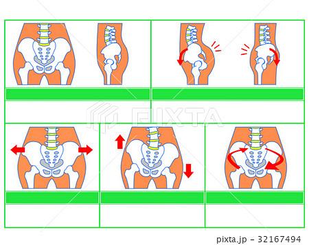 骨盤のゆがみ・分類図3(緑色・説明なし) 32167494