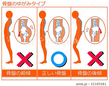 骨盤のゆがみ(前傾・正常・後傾)の比較 オレンジ色1 32185081