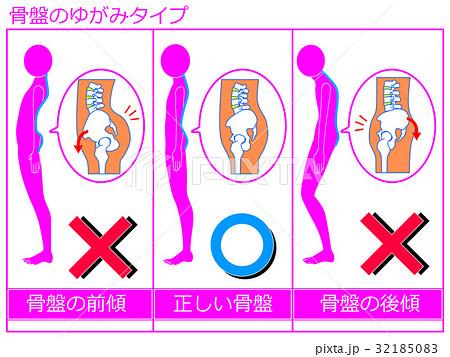 骨盤のゆがみ(前傾・正常・後傾)の比較 ピンク色1 32185083