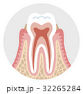 初期の歯周病 歯の断面図 32265284