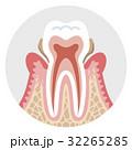 中期の歯周病 歯の断面図 32265285