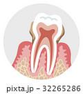末期の歯周病 歯の断面図 32265286