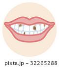 歯並び 口元アップ 虫歯 32265288