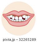 歯並び 口元アップ 歯周病 32265289