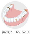 下顎の歯列 虫歯 32265293