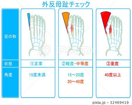 外反母趾の進行度チェック(青色・説明あり) 32469419