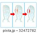 外反 母趾 足指のイラスト 32472782