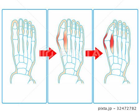 外反母趾の悪化イメージ(青色) 32472782