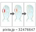 外反 母趾 足指のイラスト 32476647