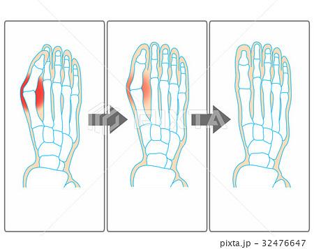 外反母趾の改善イメージ(灰色) 32476647