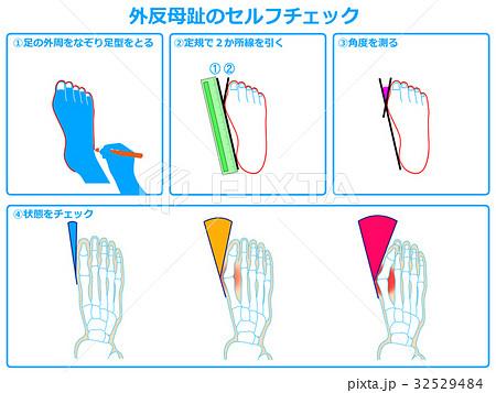 外反母趾のセルフチェック1(青色) 32529484
