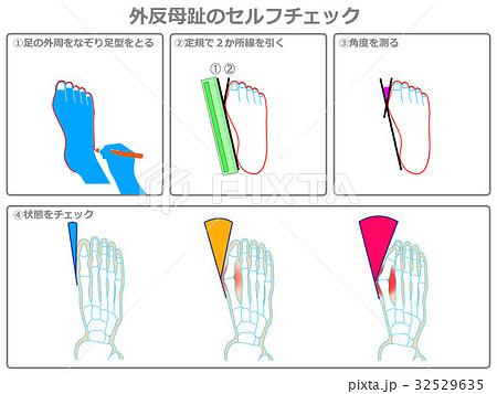 外反母趾のセルフチェック1(灰色・説明あり) 32529635