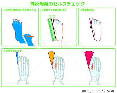 外反母趾のセルフチェック1(緑色・説明あり) 32529636