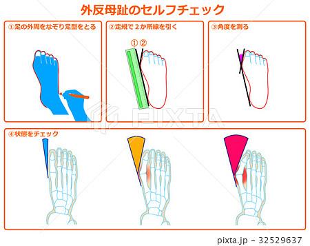 外反母趾のセルフチェック1(オレンジ色・説明あり) 32529637