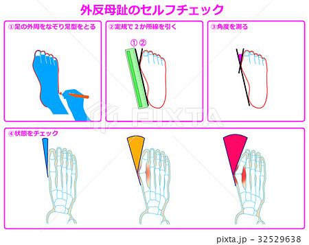 外反母趾のセルフチェック1(ピンク色・説明あり) 32529638