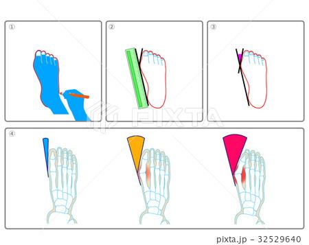 外反母趾のセルフチェック(灰色・説明なし) 32529640