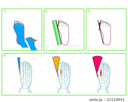 外反母趾のセルフチェック(緑色・説明なし) 32529641