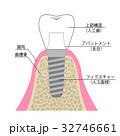 インプラント 説明図 32746661