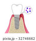 インプラント 歯肉炎 32746662