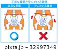歪み 比較 骨盤矯正のイラスト 32997349
