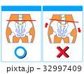 歪み 比較 骨盤矯正のイラスト 32997409