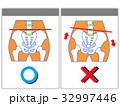 歪み 比較 骨盤矯正のイラスト 32997446