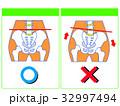 歪み 比較 骨盤矯正のイラスト 32997494