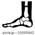 骨折 レントゲン X線のイラスト 33093842
