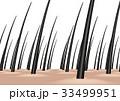 頭皮 毛 髪の毛のイラスト 33499951