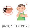太めの女性。虫歯。歯周病。 33619170