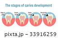 歯 虫歯 デンタルのイラスト 33916259