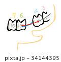 歯 歯列 矯正のイラスト 34144395