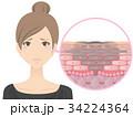 女性(しみ) 34224364