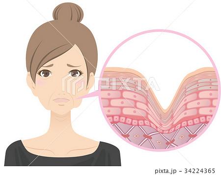 女性(しわ) 34224365